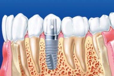 Классическая двухэтапная имплантация зубов цены