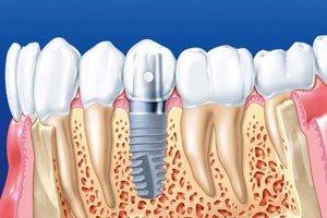 Классическая имплантация в два этапа