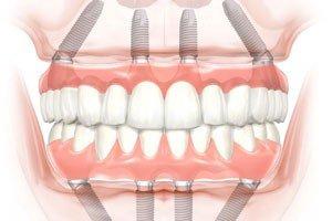 Имплантация и протезирование на 4 или 6 имплантах (All-On-4/6 )